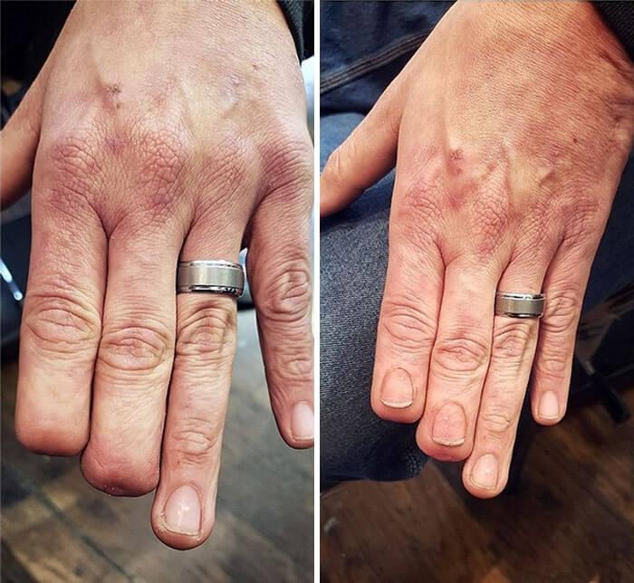 Transformações em cicatrizes e marcas de nascença